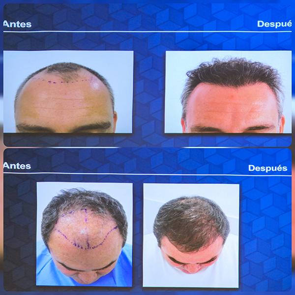Kaloni,-tratamientos-caída-cabello