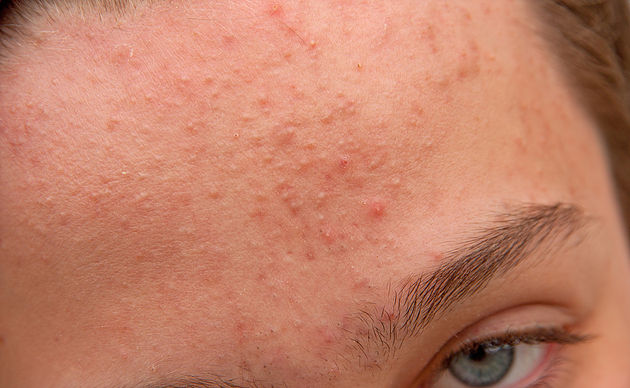 How to get rid of Comedones / Acne?