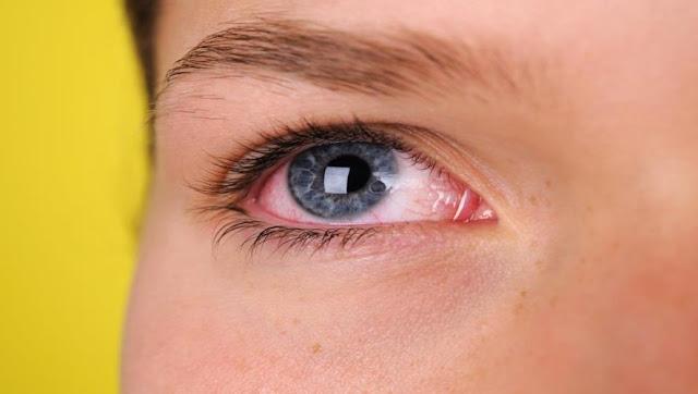 كيفة التعامل في حال إصابة العين بالمواد الكيميائية؟