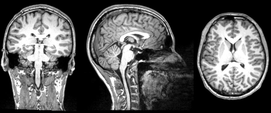 Aivojen Magneettikuvaus