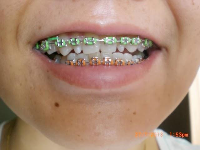 Orange And Green Braces Color Braces Picker Get Braces Com 7