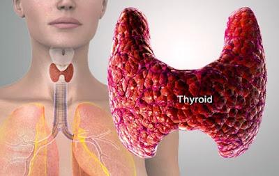 Come curare ipotiroidismo: 1 su 5 sottovaluta effetti
