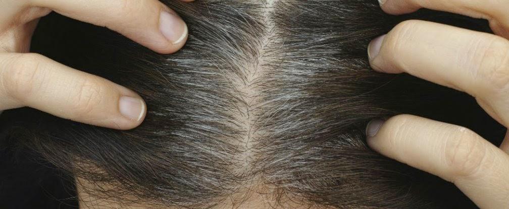 salen canas en el pelo pubico