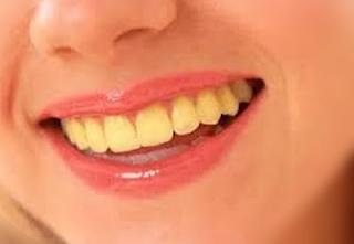 Mencegah Agar Gigi Tidak Berwarna Kuning