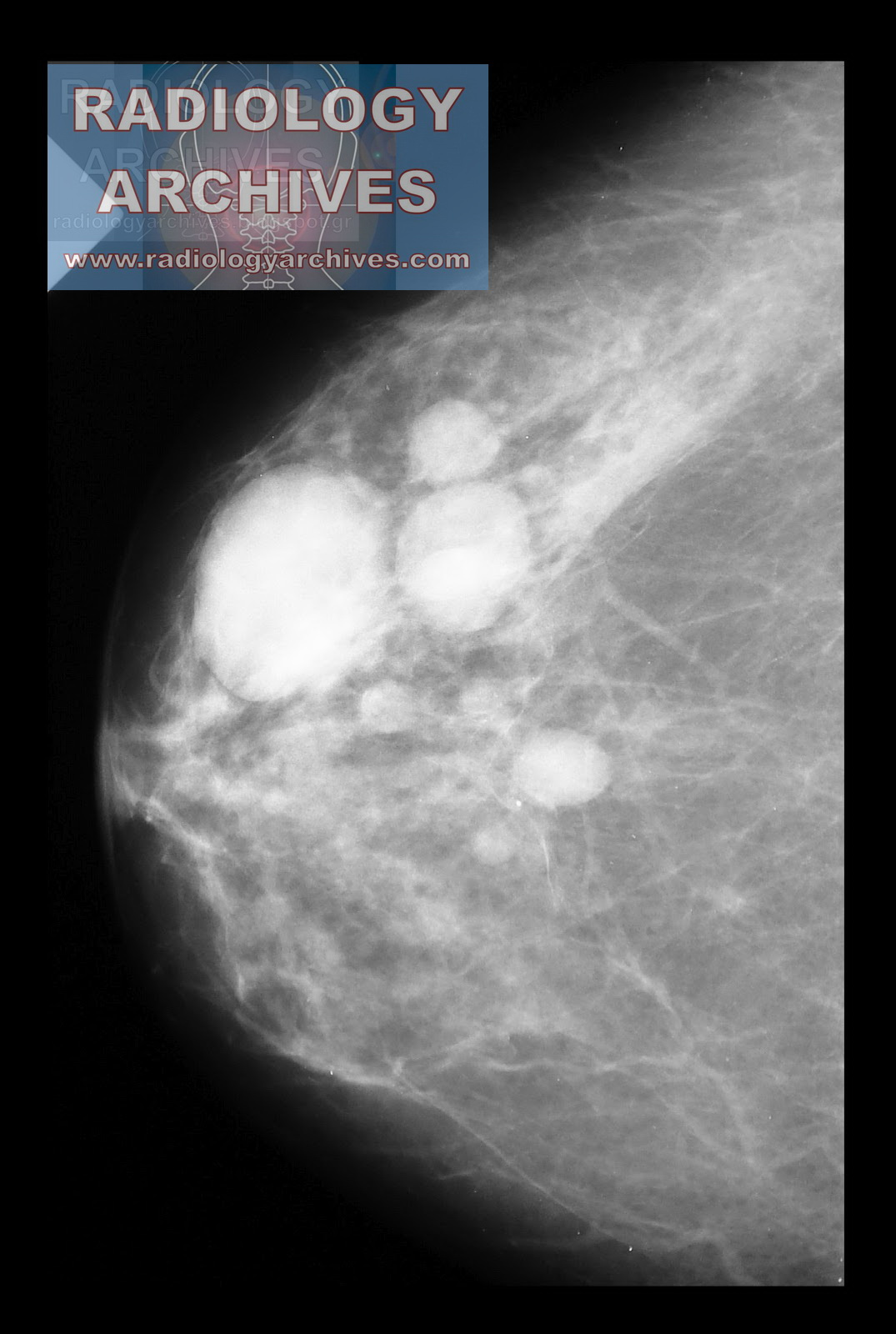 Cysts are diagnosed by physical exam, medical history, mammography, and  ultrasound Ultrasound is frequently used to tell whether a lump is solid or  filled ...