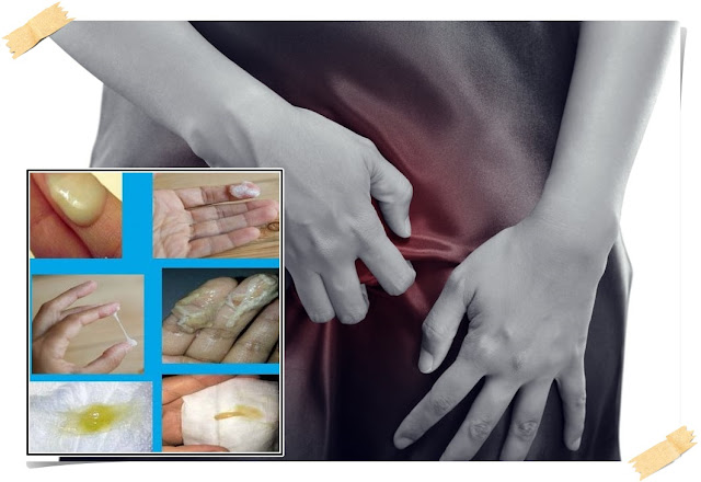 Cara Mengobati Gatal Pada Vagina Disertai Keputihan Sampai Tuntas