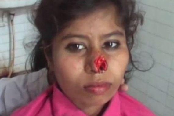 Oh Oh: Indian Man Bites Off Wife's Nose