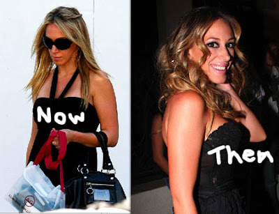 Haylie Duff Plastic Surgery Before and After Breast ...