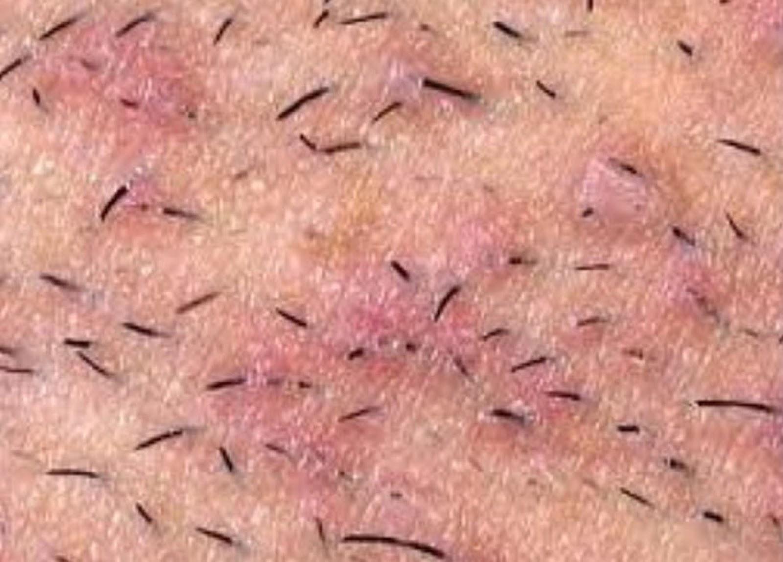 Раздражение после бритья в интимной зоне фото