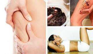 La meilleure façon de traiter la peau pour réduire la cellulite