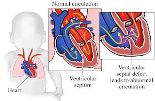 Obat herbal jantung bocor untuk bayi