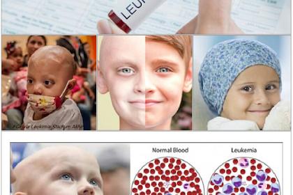 Deteksi Dini Kanker Pada Anak, Pengobatan Medis dan Dampaknya