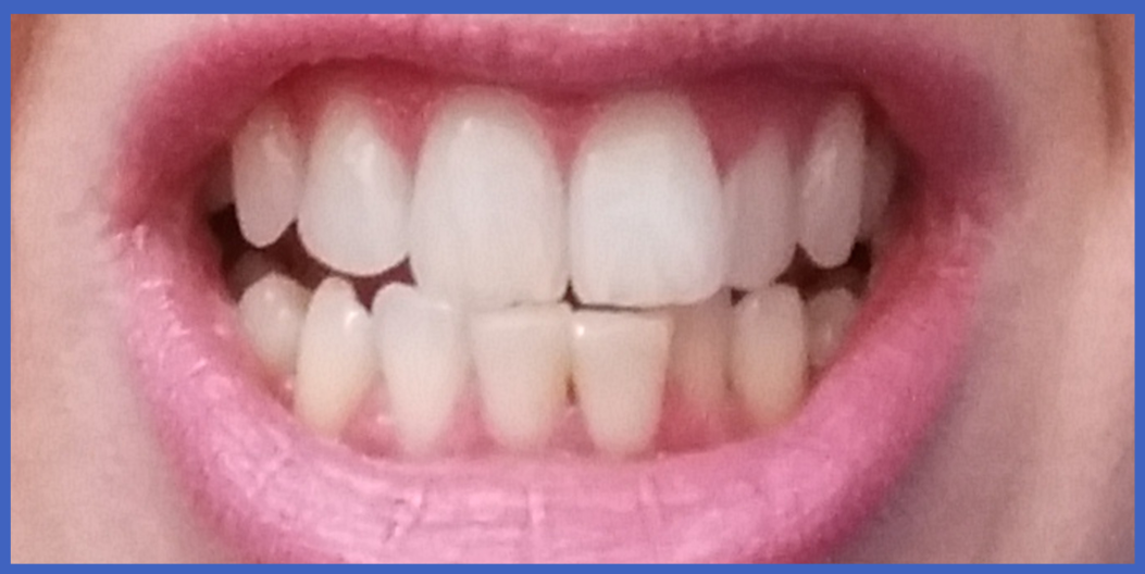 Pure Smile Teeth Whitening Treatment Experience Review