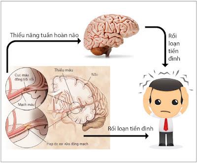 Triệu chứng rối loạn tiền đình có giống với thiểu năng tuần hoàn não