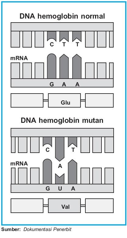 Contoh Mutasi Gen : contoh, mutasi, Contoh, Mutasi, Kromosom, Manusia, Mekanisme, Proses, Terjadinya, Sickle–cell, Anemia