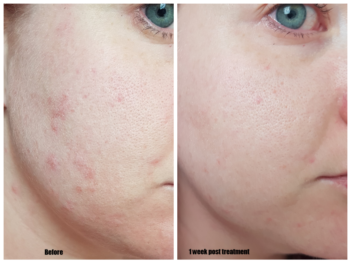Microneedling & Me | Thérapie Clinic Before and after