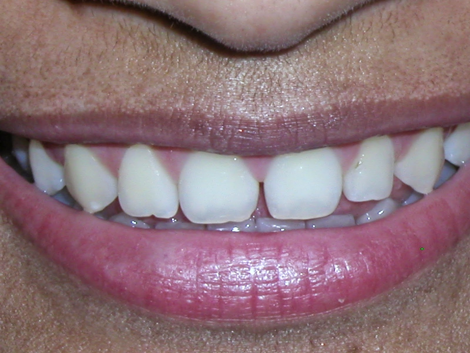 Porcelain veneers are a simple solution