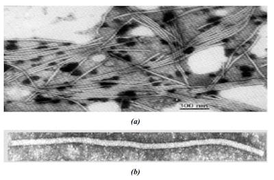 Klasifikasi ScMV (Sugarcane Mosaic Virus), ScMV adalah, virus ScMV, Komposisi dan Struktur ScMV (Sugarcane Mosaic Virus), Partikel virus marga Potyvirus, Struktur gen pada Potyvirus, Inang ScMV (Sugarcane Mosaic Virus), Penularan ScMV (Sugarcane Mosaic Virus) dan Gejala ScMV (Sugarcane Mosaic Virus)