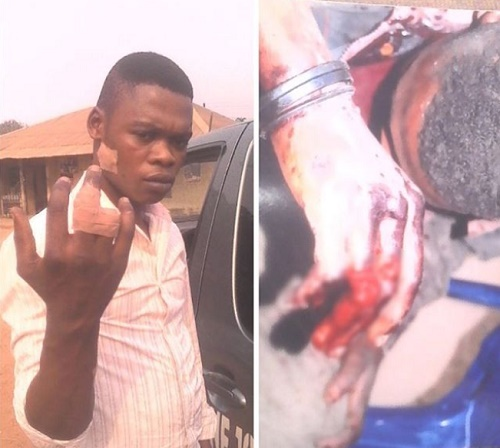 Photo: Chinese Cuts Off Nigerian Worker's Finger At Work