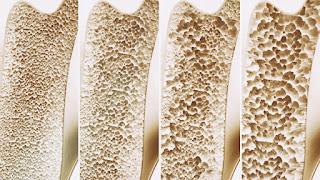 هشاشة العظام - وأفضل العلاجات الطبية والطبيعية لذلك