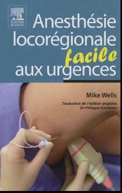 Livre : Anesthésie Locorégionale Aux Urgences - Facile