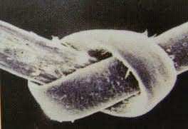 nudo microscópico en el pelo