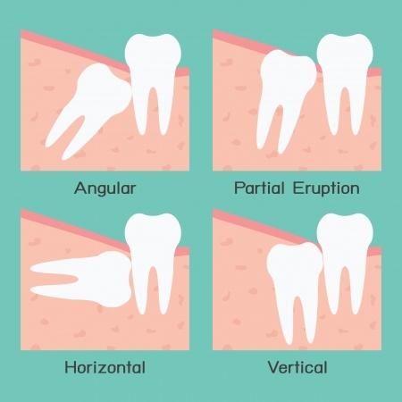 Pembedahan Gigi Bongsu Ditangguhkan