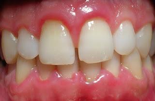 La periodontitis y su prevención