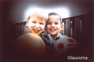 Normal vision compared with vision with glaucoma