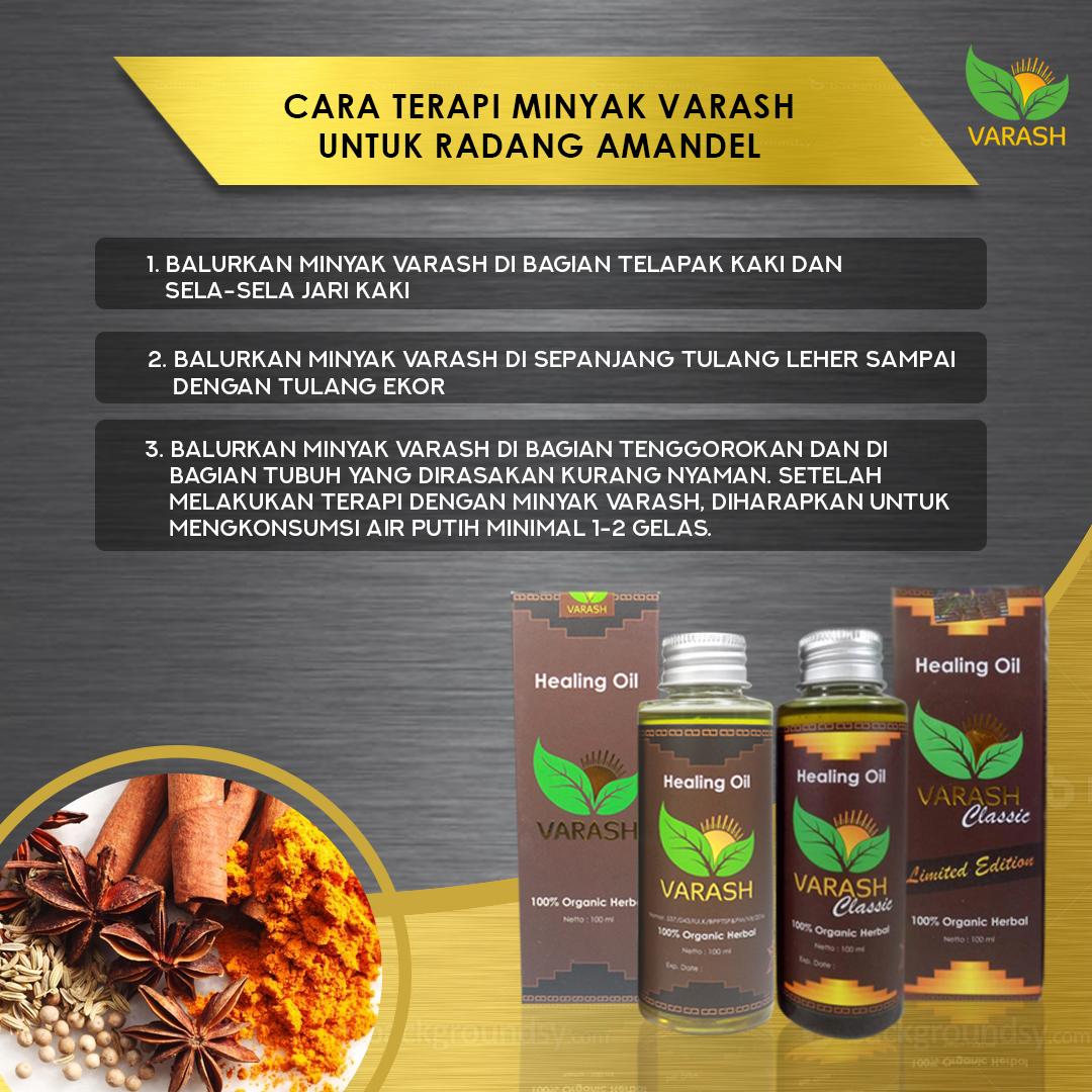 Varash Healing Oil Minyak Herbal Kesehatan Gosok8 Daftar Classic Asli Denpasar Bali Cara Terapi Untuk Keluhan Radang Amandel