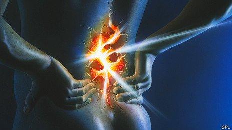 Dolor de pectoral izquierdo y espalda