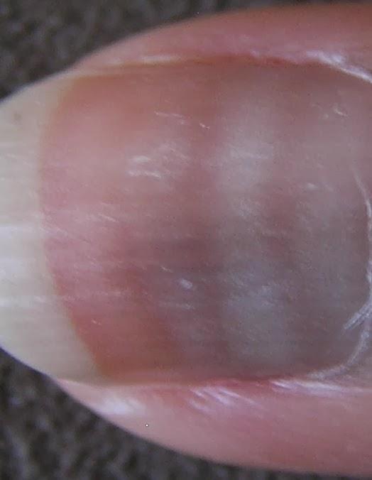 Podologia saúde ao seus pés Alterações nas unhas (lamina ungueal)