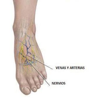 deformidades del pie diabetes