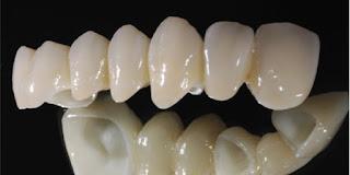 Trồng răng sứ vĩnh viễn bao nhiêu tiền ?