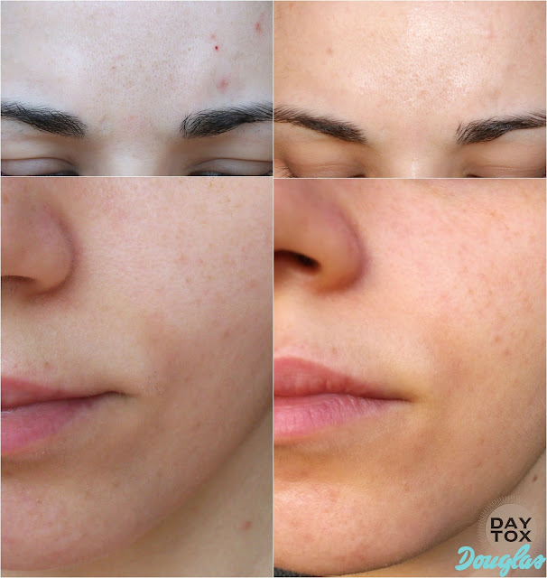 Daytox detox and antiage skincare program by Douglas: before and after