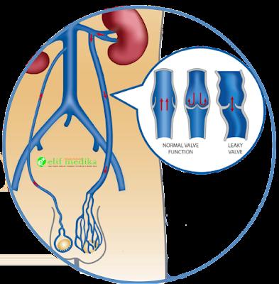 gejala varikokel