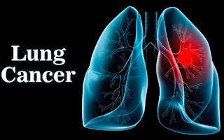 Can You Get Lung Cancer from Smoking Weed