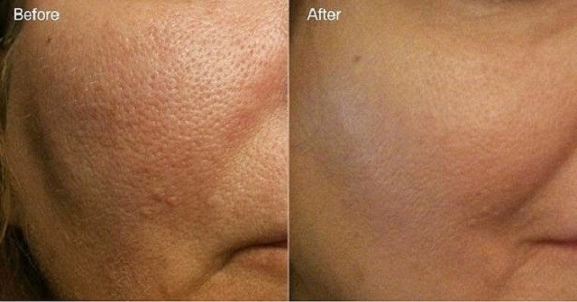 skin-pores-treatment