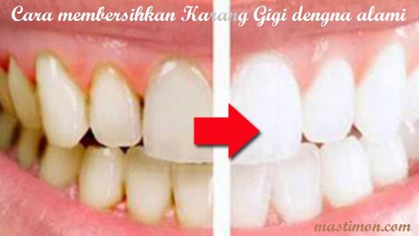 Cara Membersihkan Karang Gigi Secara Alami Dengan Buah Buahan