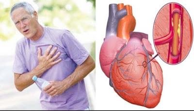 9 Hal yang Harus Anda Perhatikan Saat Terkena Serangan Jantung