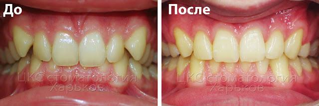 прикус до и после лечения брекетами