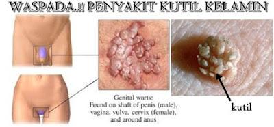 Kutil genital atau kutil kelamin