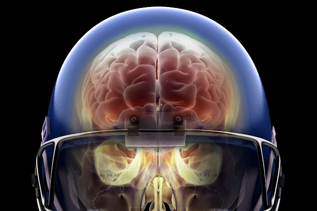 #Health : Research reveals that 2.5 Million U.S. High School Students Had a Concussion in 2017 !