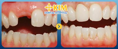 cấy ghép implant phương pháp phục hồi răng mất hoàn hảo