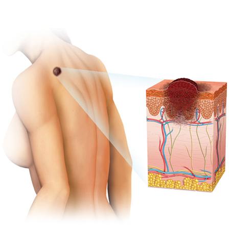 Карцином на кожата меланом