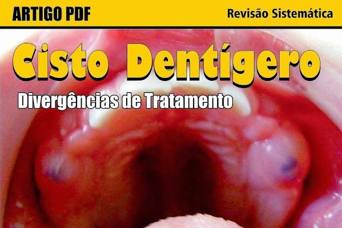 PDF: Divergências de Tratamento do Cisto Dentígero - Revisão Sistemática