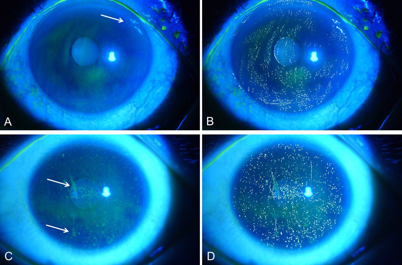 Corneal Staining