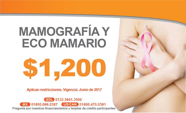 Mastografia y Ecosonograma mamario en Guadalajara ,Mexico