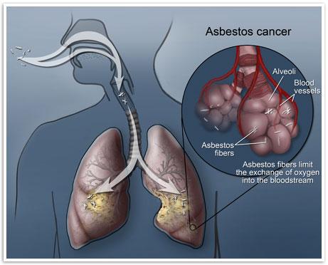 Asbestos cancer