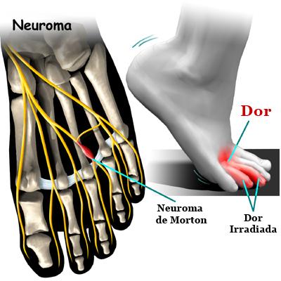 de85c34e9 ... sensação de formigamento, queimação ou choque na região plantar do pé e  nos respectivos dedos. Ocorre principalmente em mulheres de meia-idade.